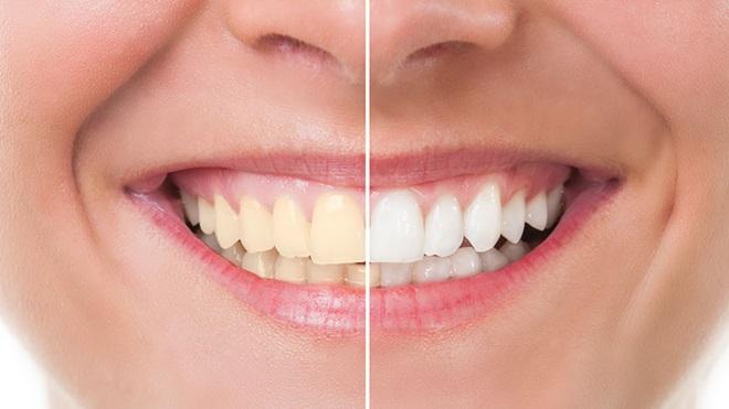 Boca con la mitad de los dientes blanqueados