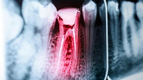 tratamientos-dentales-endodoncia