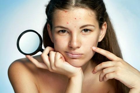 acne-remedios-y-tratamientos