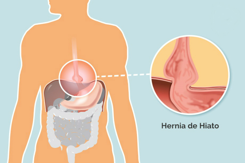 Hernia De Hiato Síntomas Y Tratamiento Ocu